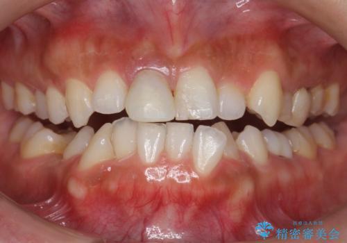 定期的なオフィスホワイトニングで白い歯の維持を。の症例 治療前