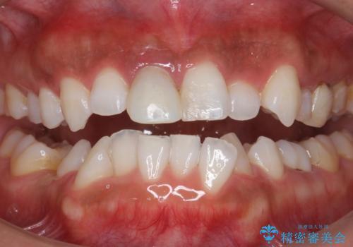 定期的なオフィスホワイトニングで白い歯の維持を。の症例 治療後