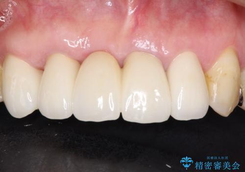 矯正を併用した前歯のセラミックブリッジ治療の治療後