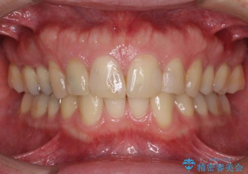 前歯のつめものが汚い セラミックできれいにの治療前