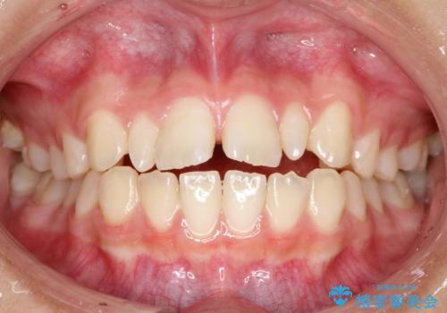 歯の形態修正も含めた矯正治療&セラミック治療の症例 治療前