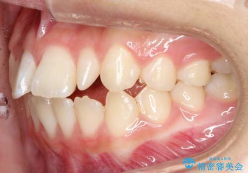 歯の形態修正も含めた矯正治療&セラミック治療の治療前