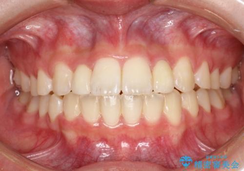 歯の形態修正も含めた矯正治療&セラミック治療の症例 治療後