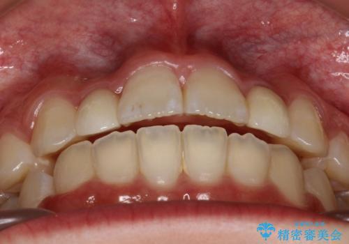 歯の形態修正も含めた矯正治療&セラミック治療の治療後