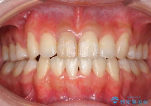 八重歯 前歯のがたがた 抜歯してワイヤー矯正の症例 治療後