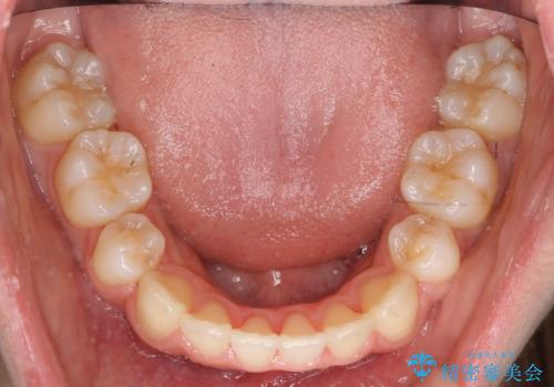 八重歯 前歯のがたがた 抜歯してワイヤー矯正の治療後