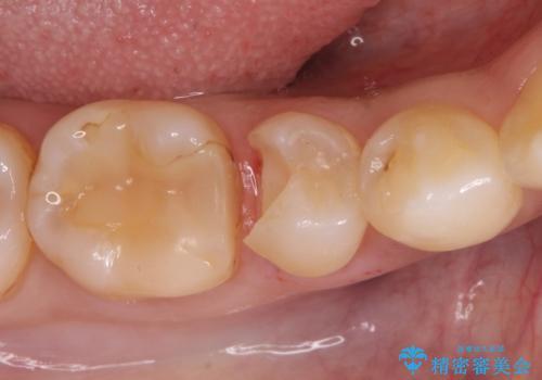 虫歯の治療 セラミックの詰め物で綺麗にの治療中