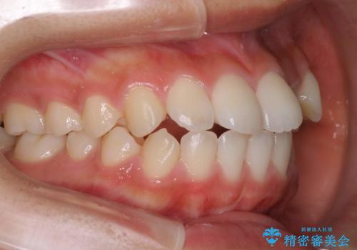 ハーフリンガル 半分裏側矯正による上下前突の抜歯矯正治療の症例 治療前