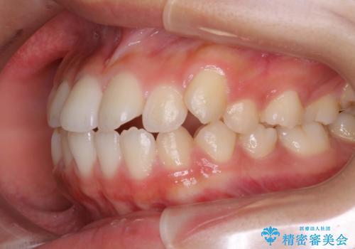 ハーフリンガル 半分裏側矯正による上下前突の抜歯矯正治療の治療前