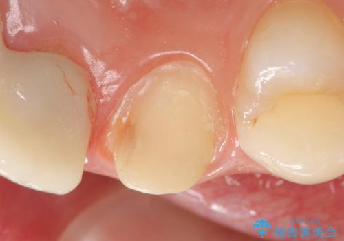 オールセラミッククラウン 前歯を綺麗にの治療中