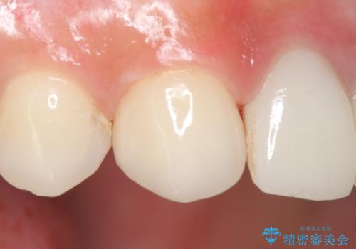 オールセラミッククラウン 前歯を綺麗にの治療後