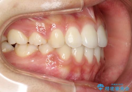 ハーフリンガル 半分裏側矯正による上下前突の抜歯矯正治療の症例 治療後
