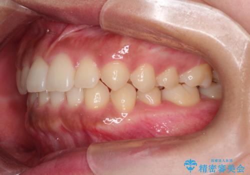前歯の隙間を閉じたい。インビザラインによる治療の治療後