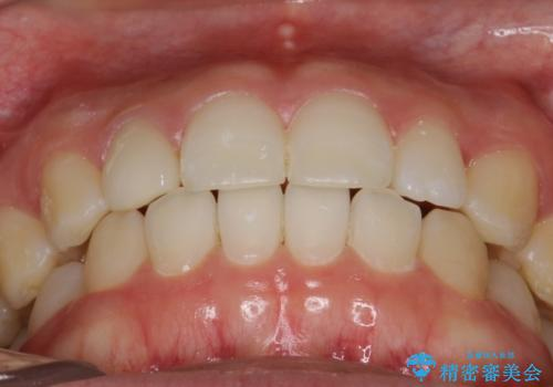 Invisalign インビザライン lite ライト 隙っ歯の改善の治療後