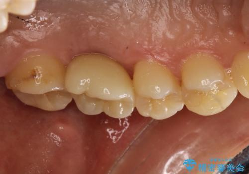 奥歯が割れてしまった! → インプラントによるかみ合わせの回復の治療後