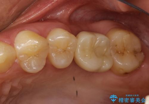 奥歯が割れてしまった! → インプラントによるかみ合わせの回復の症例 治療後