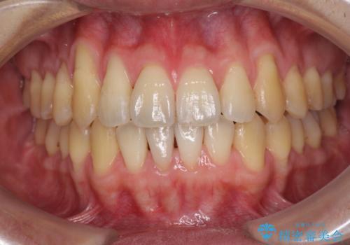 インビザラインによる口元の改善の治療後