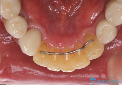 奥歯で物を噛めるようにしたい 入れ歯による咬合回復の治療後