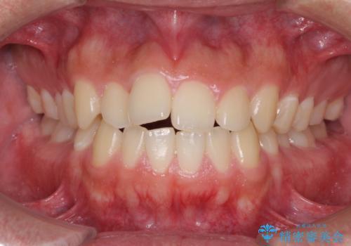 前歯のデコボコをワイヤー矯正で速やかに改善の症例 治療前