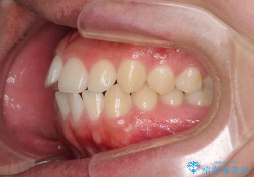 前歯のデコボコをワイヤー矯正で速やかに改善の治療前