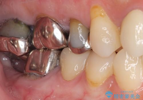 前歯のブリッジを綺麗に作り変えたいの治療後