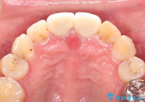 変色した前歯をセラミックできれいに レイヤリングセラミックの治療後
