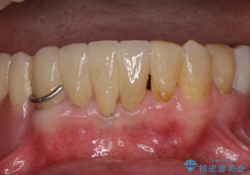 インプラントと入れ歯による全顎補綴治療の治療後