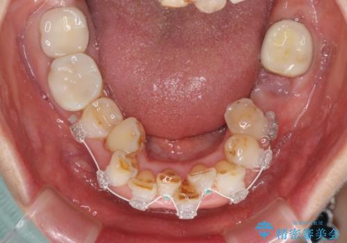 前歯をきれいに 部分矯正とオールセラミッククラウンの治療中