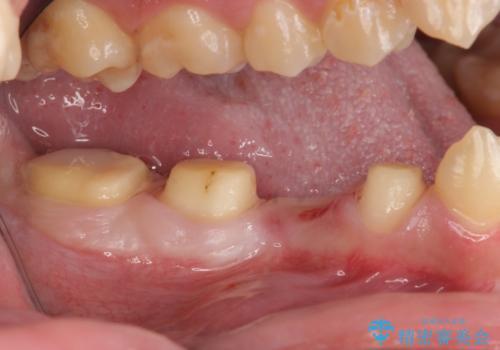オールセラミッククラウン 歯肉より深い虫歯の治療の治療中