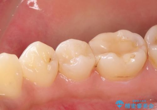 虫歯の治療 セラミックの詰め物で綺麗にの治療後
