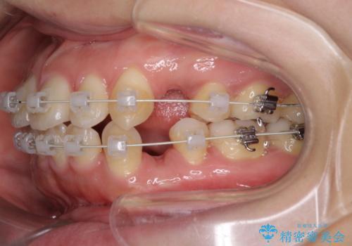 口元出てるのが気になる ワイヤーでの抜歯矯正で口元をすっきりとの治療中