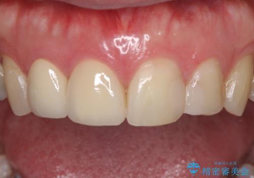 前歯のつめものが汚い セラミックできれいにの治療後
