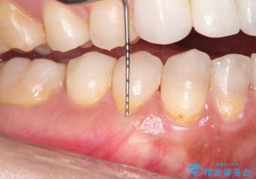 下がってしまった歯肉を元に戻したいが、自分の歯ぐきを移植するのは気が進まない : バイオマテリアルを応用した歯肉退縮への手術的対応の治療後