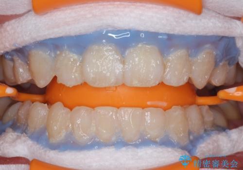 黄ばんだ歯をホワイトニングできれいに。の治療中