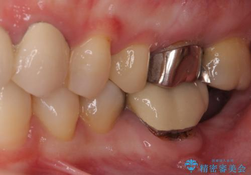 前歯のブリッジを綺麗に作り変えたいの治療前