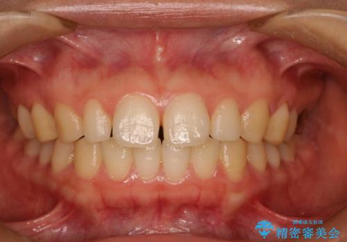 Invisalign インビザライン lite ライト 隙っ歯の改善の治療前