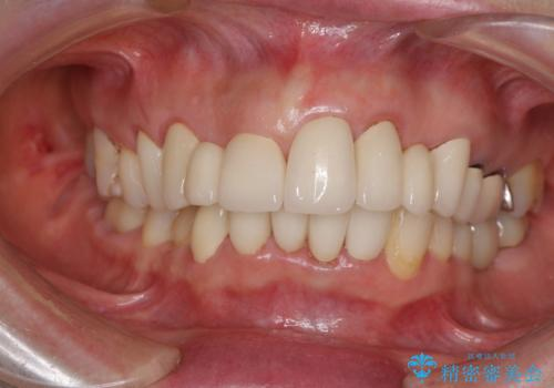 前歯ブリッジの症例 治療後