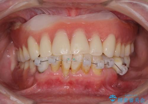 インプラントと入れ歯による全顎補綴治療の治療中