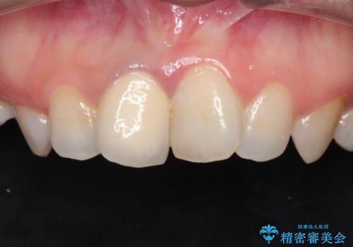 前歯の治療。再根管治療~セラミッククラウンの治療前