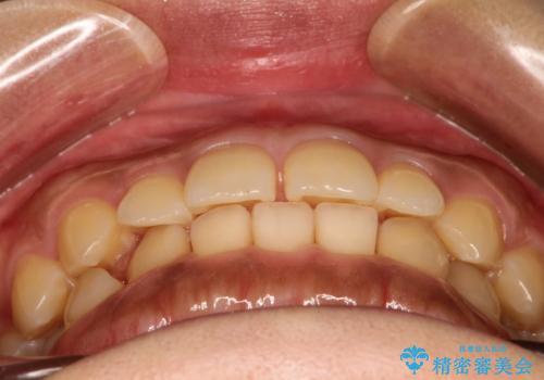前歯の隙間を閉じたい。インビザラインによる治療の治療前