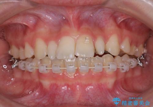 歯の形態修正も含めた矯正治療&セラミック治療の治療中