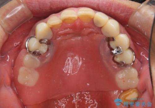 奥歯で物を噛めるようにしたい 入れ歯による咬合回復の治療中