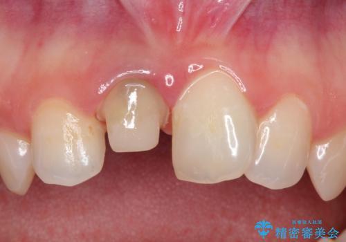前歯の治療。再根管治療~セラミッククラウンの治療中