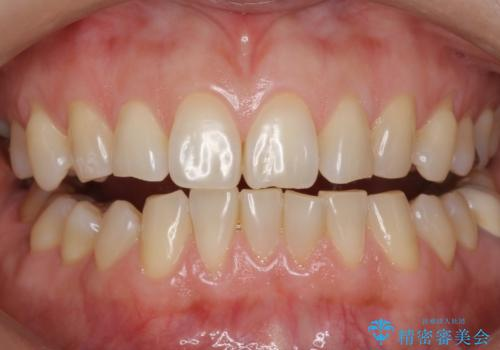 エクセレントホワイトニングで白くてきれいな歯に。の症例 治療前