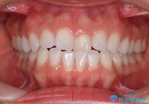 反対咬合を治したい インビザラインによる矯正治療の症例 治療前
