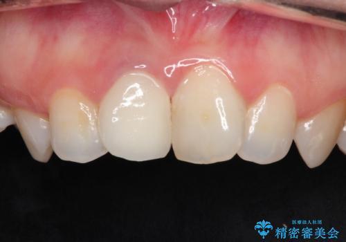前歯の治療。再根管治療~セラミッククラウンの治療後