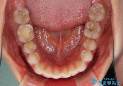 反対咬合を治したい インビザラインによる矯正治療の治療前