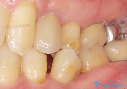 歯がわれた 抜歯してインプラント 50代男性の症例 治療後