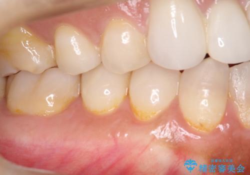 下がってしまった歯肉を元に戻したいが、自分の歯ぐきを移植するのは気が進まない : バイオマテリアルを応用した歯肉退縮への手術的対応の症例 治療後