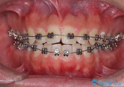前歯のデコボコをワイヤー矯正で速やかに改善の治療中